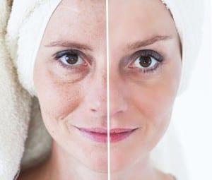pterostilbene for anti aging